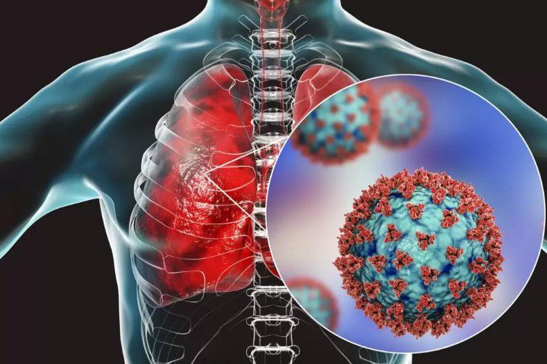 Пневмония от вируса